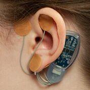 Imagen: Un dispositivo percutáneo nuevo diseñado para estimular los nervios craneales a fin de atenuar el dolor del SII (Fotografía cortesía de IHS).