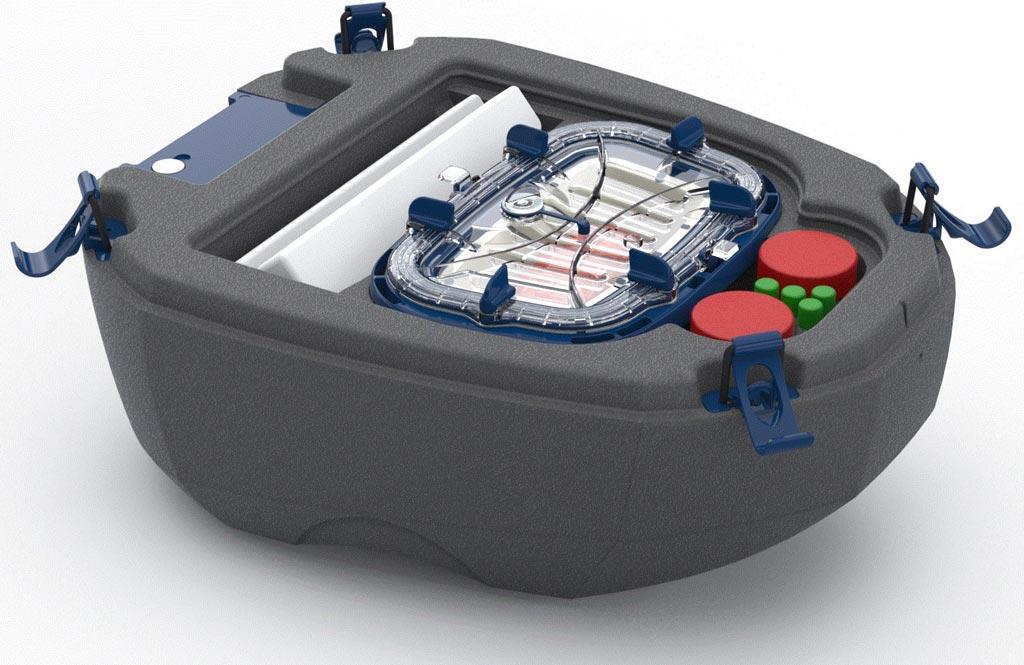 Imagen: El dispositivo de preservación de órganos Vivian (Fotografía cortesía de Transplant Biomedicals).