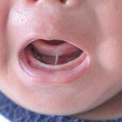 Imagen: Un frenillo lingual puede ser la causa de problemas en la lactancia (Fotografía cortesía de Shutterstock).