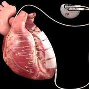 Imagen: El dispositivo implantado diseñado para estimular la regeneración celular en la miocardiopatía (Fotografía cortesía de Berlin Heals).