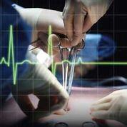 Imagen: La investigación muestra que hay un total de ocho complicaciones involucradas en las muertes posquirúrgicas no cardíacas (Fotografía cortesía de Shutterstock).