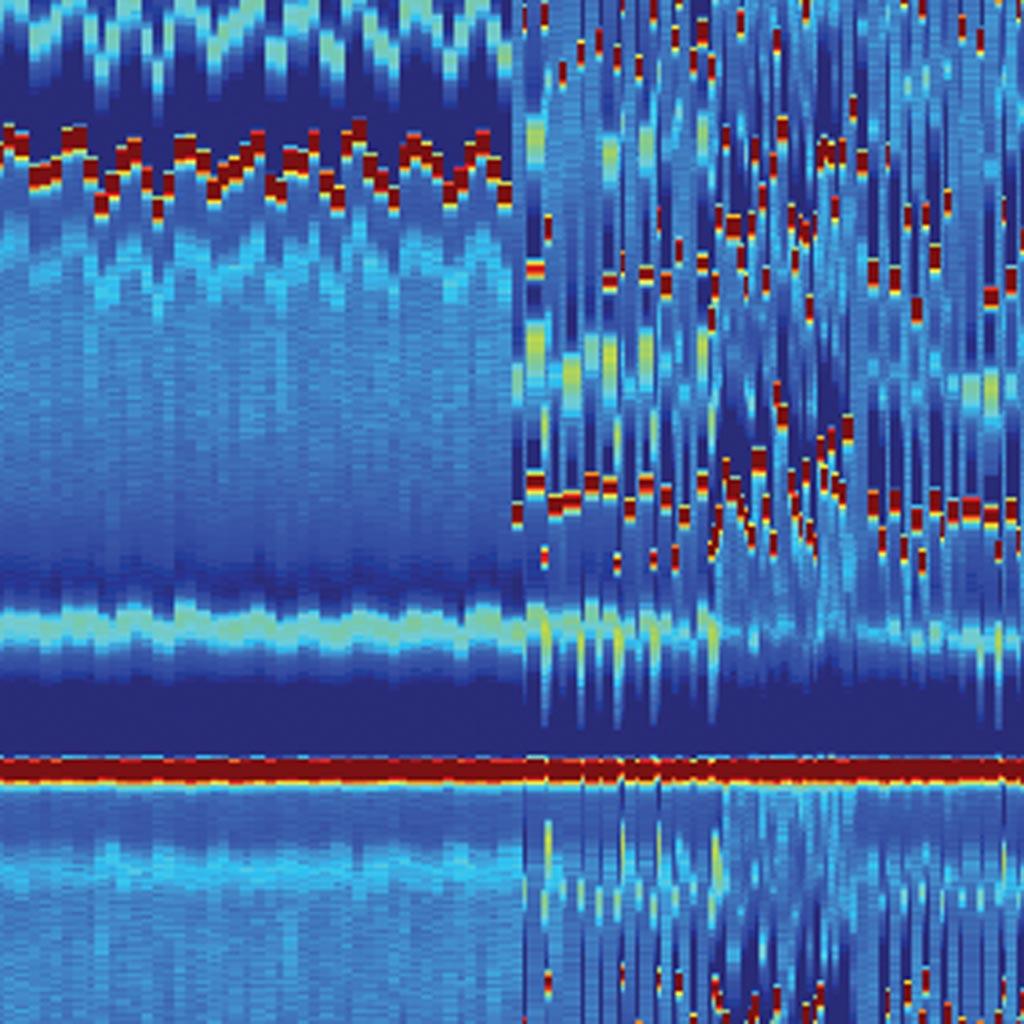 Imagen: Un ejemplo de una electrocardiomatriz con eventos marcados (Foto cortesía de la U-M).