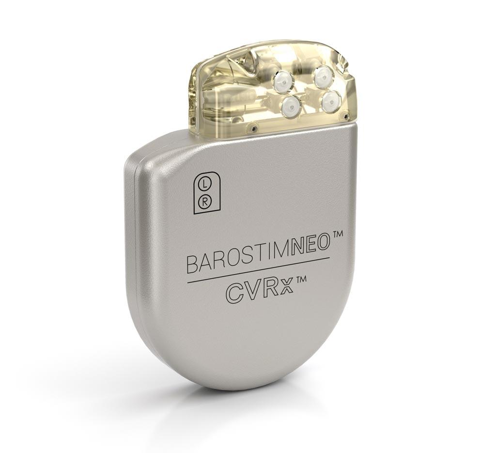 Imagen: El sistema Barostim Neo IPG (Fotografía cortesía de CVRx).