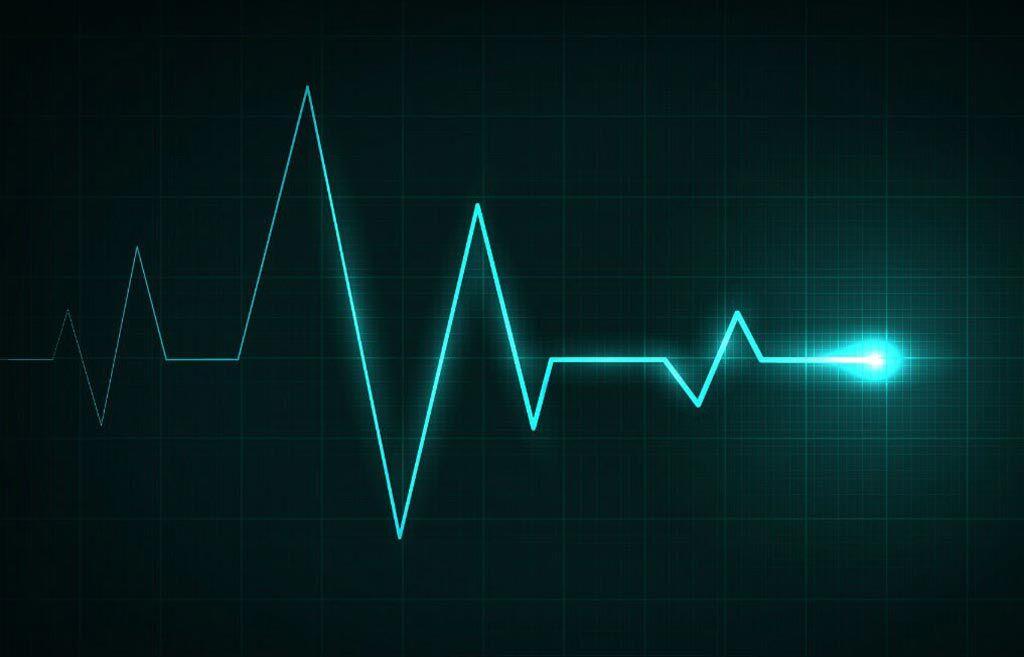 Imagen: Un estudio nuevo afirma que la insuficiencia cardíaca ahora se puede detectar con un solo latido cardíaco (Fotografía cortesía de la Universidad de Surrey).
