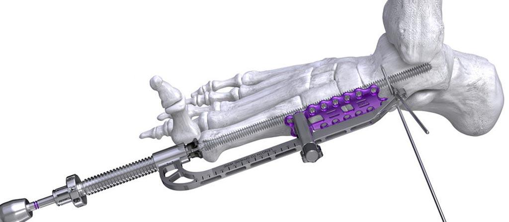 Imagen: El Sistema de Tornillo Joust Beaming y la Guía de Reducción PRECISION (Fotografía cortesía de Paragon 28).