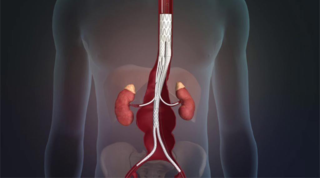 Imagen: El Sistema de Injerto de Stent Valiant TAAA (Fotografía cortesía de Sanford Health).
