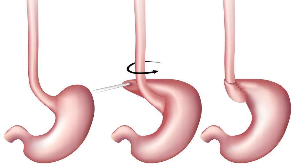 Imagen: La fundoaplicación de Nissen es una buena opción para la acidez estomacal refractaria a los PPI (Imagen cortesía de Shutterstock).