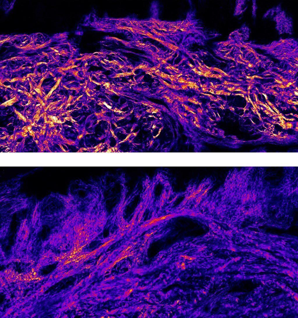 Imagen: Las fibras de los haces de colágeno son mucho más gruesas en la piel plantar (arriba) que en la piel del cuerpo (abajo) (Fotografía cortesía del Imperial).