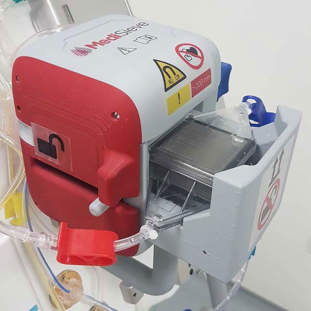 Imagen: El sistema magnético de filtración de sangre MediSieve (Fotografía cortesía de MediSieve)