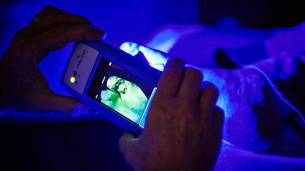 Imagen: El dispositivo portátil MolecuLight i:X utiliza imagenología de fluorescencia para identificar bacterias (Fotografía cortesía de MolecuLight)