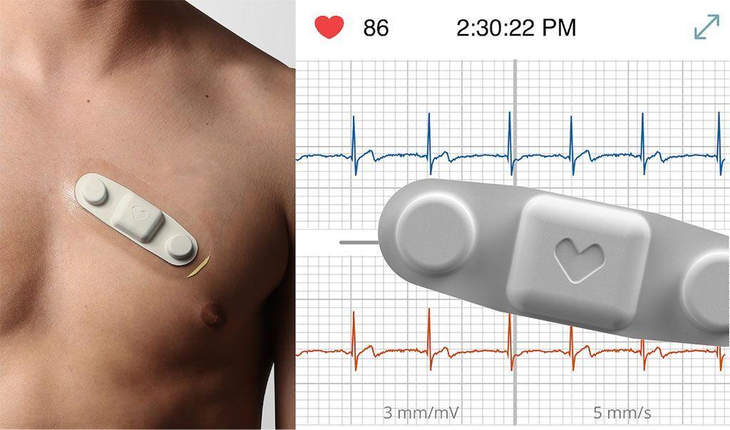 Imagen: Un pequeño parche ayuda a controlar los signos vitales de los pacientes de forma remota (Fotografía cortesía de VivaLNK)