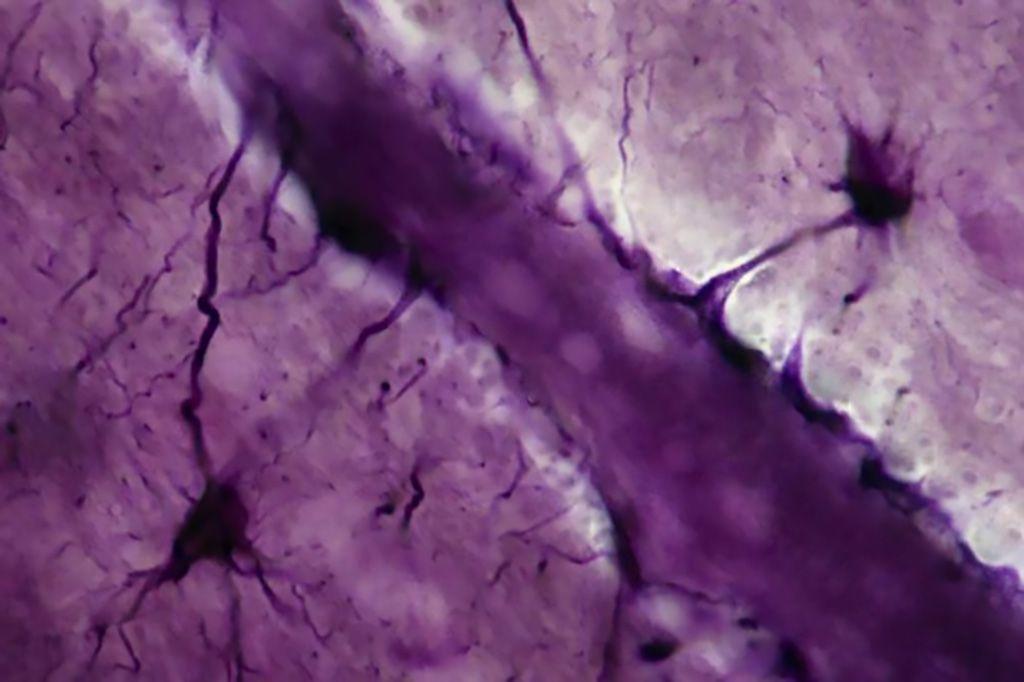 Imagen: El ultrasonido y las burbujas de aire pueden afectar la barrera encefálica durante varias horas (Fotografía cortesía de Getty Images)