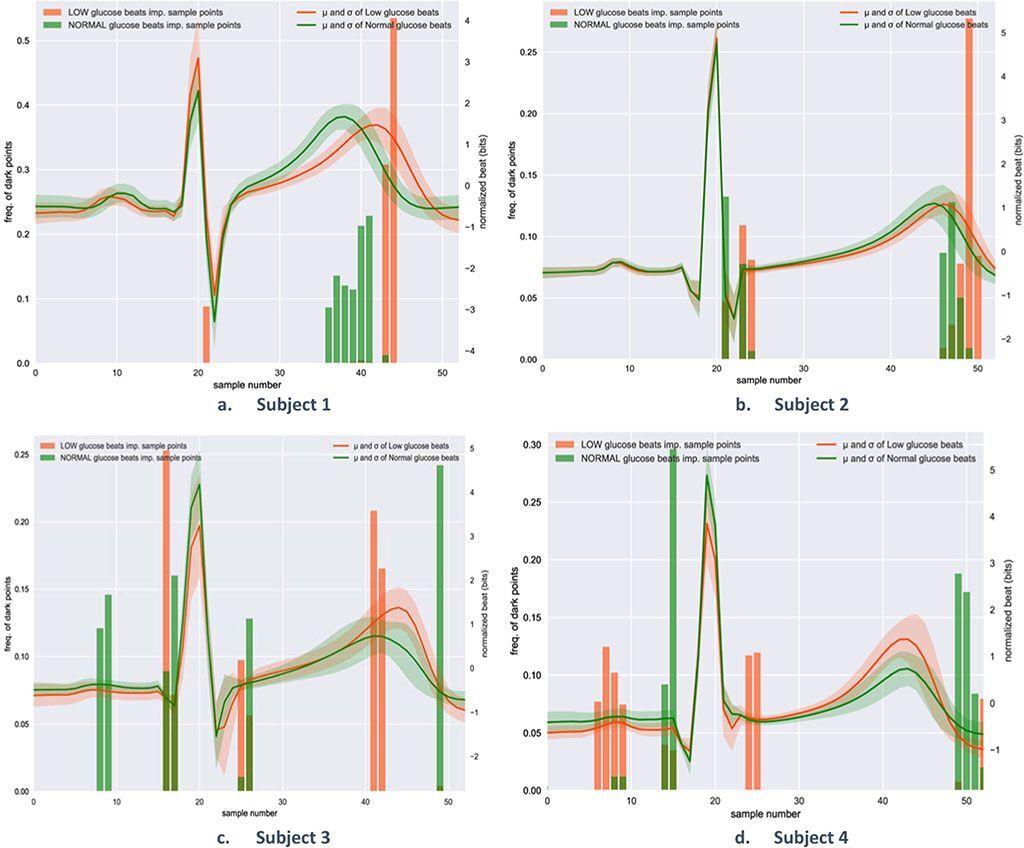 Imagen: Los segmentos de latidos cardiacos del ECG ayudan a identificar los eventos de hipoglucemia (Fotografía cortesía de la Universidad de Warwick)