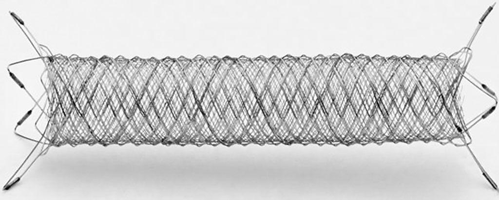 Imagen: Una malla trenzada de nitinol ayuda a ocluir los aneurismas cerebrales (Fotografía cortesía de MicroVention)
