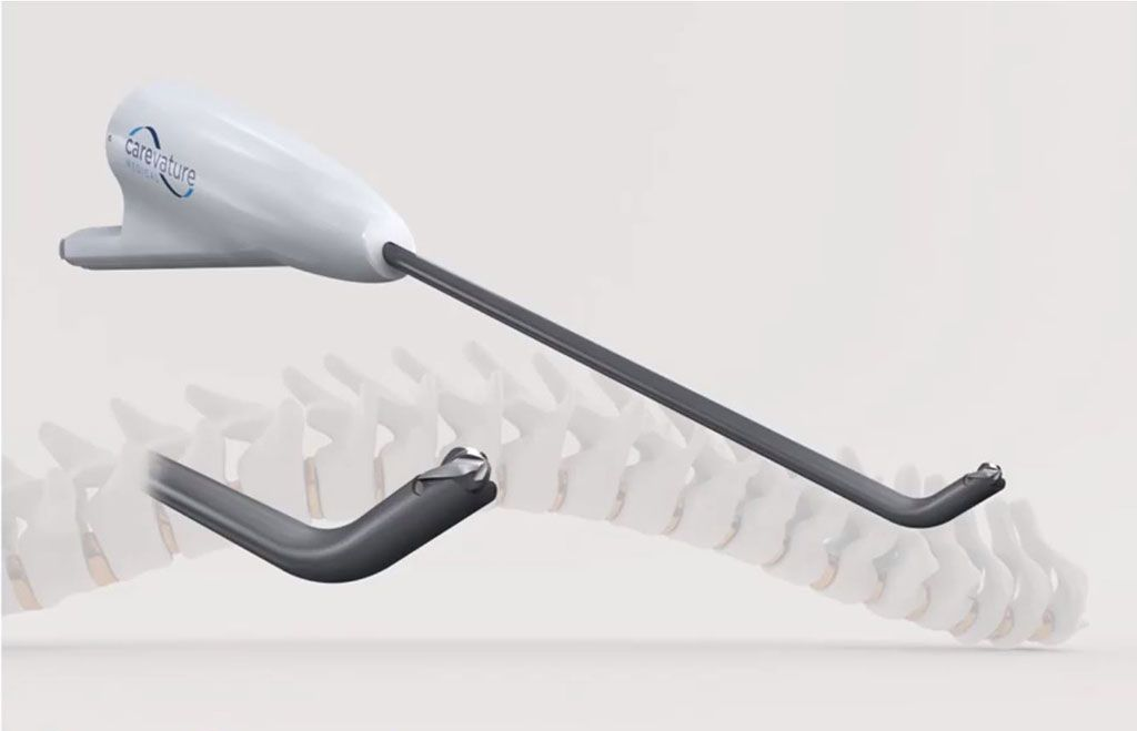 Imagen: Un taladro mínimamente invasivo protege las estructuras neurales (Fotografía cortesía de Carevature Medical)