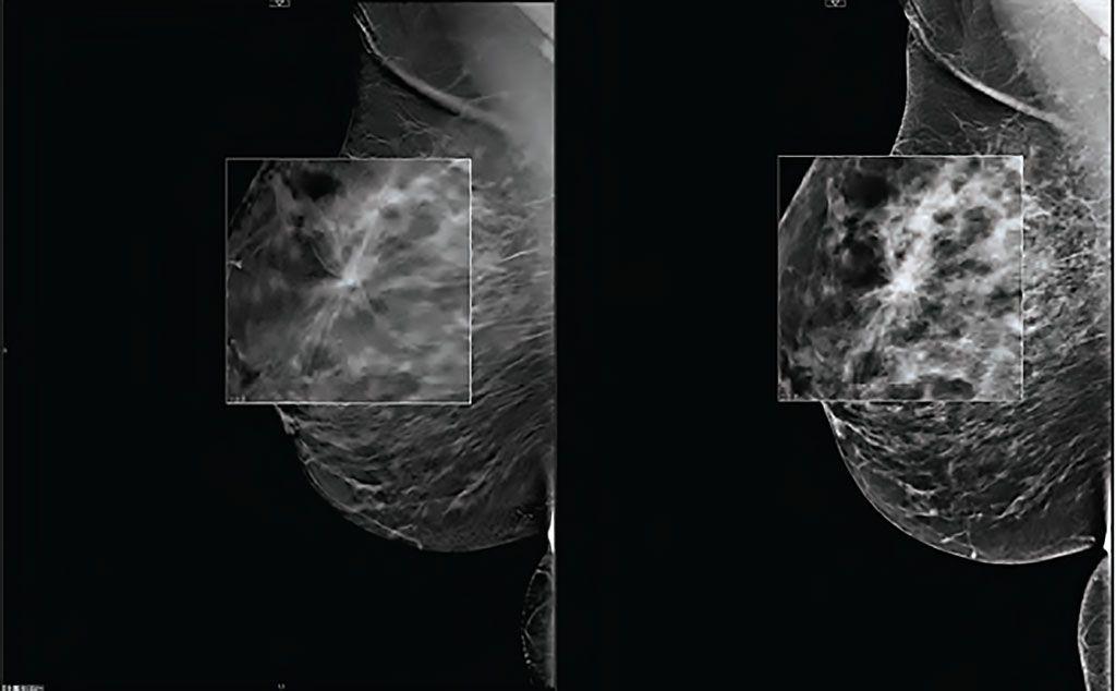 Imagen: La TDM puede aumentar las tasas de detección de cáncer de seno (Fotografía cortesía de Carestream)