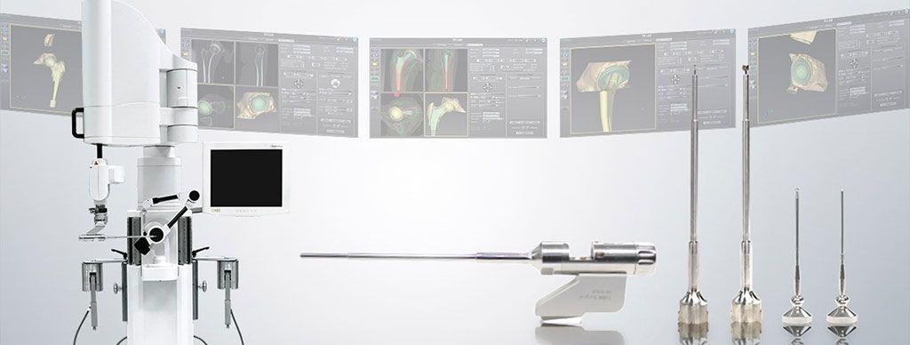 Imagen: El Sistema Quirúrgico TSolution One mejora los procedimientos de reemplazo de articulaciones (Fotografía cortesía de THINK Surgical)