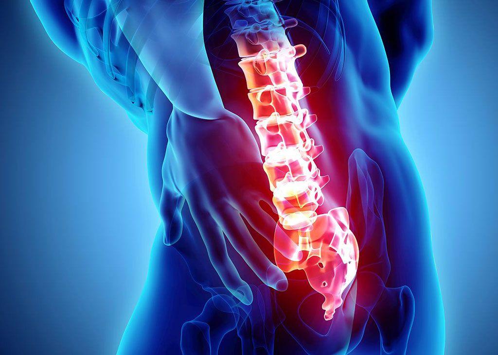 Imagen: La microdiscectomía lumbar es la mejor solución para el dolor crónico de la ciática (Fotografía cortesía de 123RF)