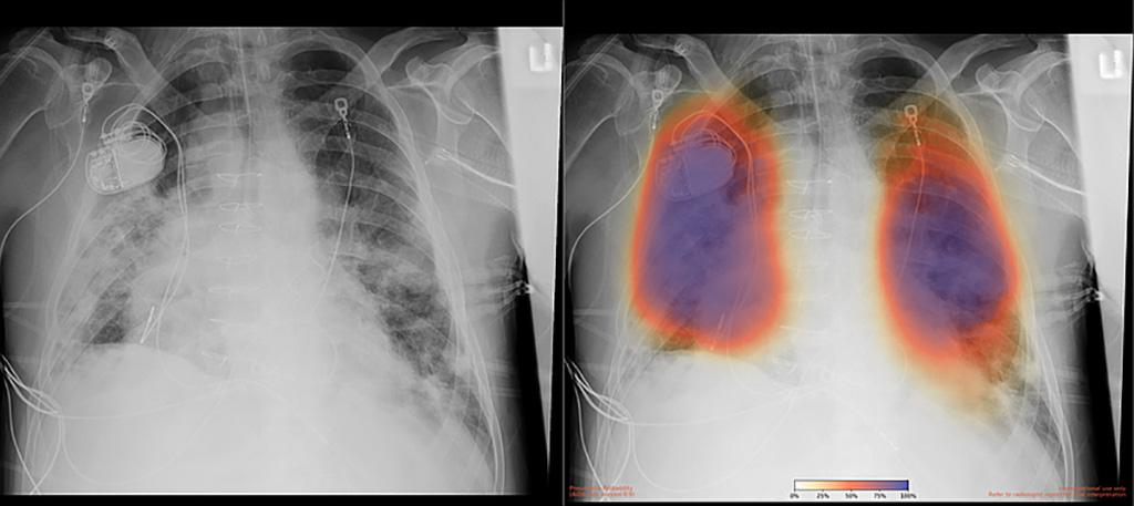 Imagen: Radiografía de tórax de un paciente con neumonía por COVID-19, radiografía original (izquierda) y resultado con IA para neumonía (derecha) (Fotografía cortesía de UC San Diego Health)