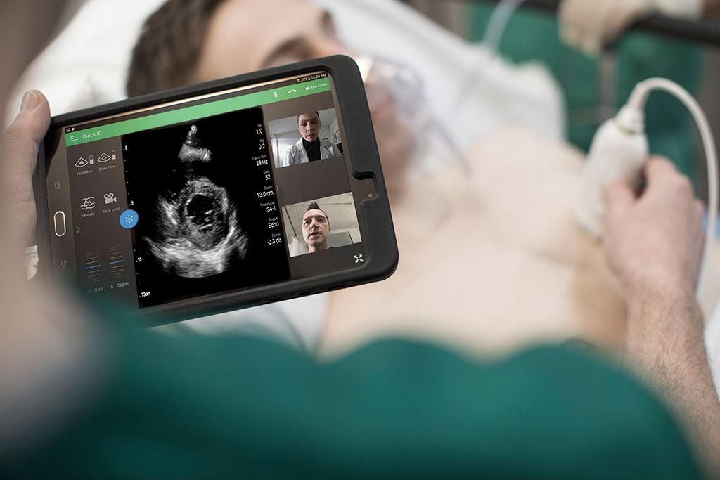 Imagen: Philips recibe la aprobación para uso del portafolio de ultrasonido para manejar complicaciones por COVID-19 (fotografía cortesía de Philips Healthcare)