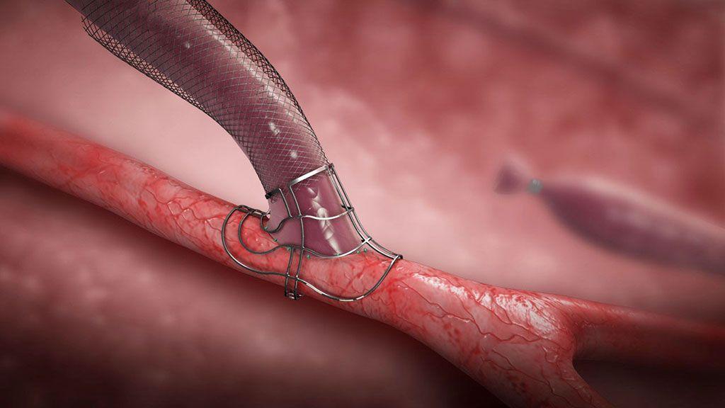 Imagen: Dispositivo innovador facilita las FAV en los pacientes en hemodiálisis (Fotografía cortesía de Laminate Medical)