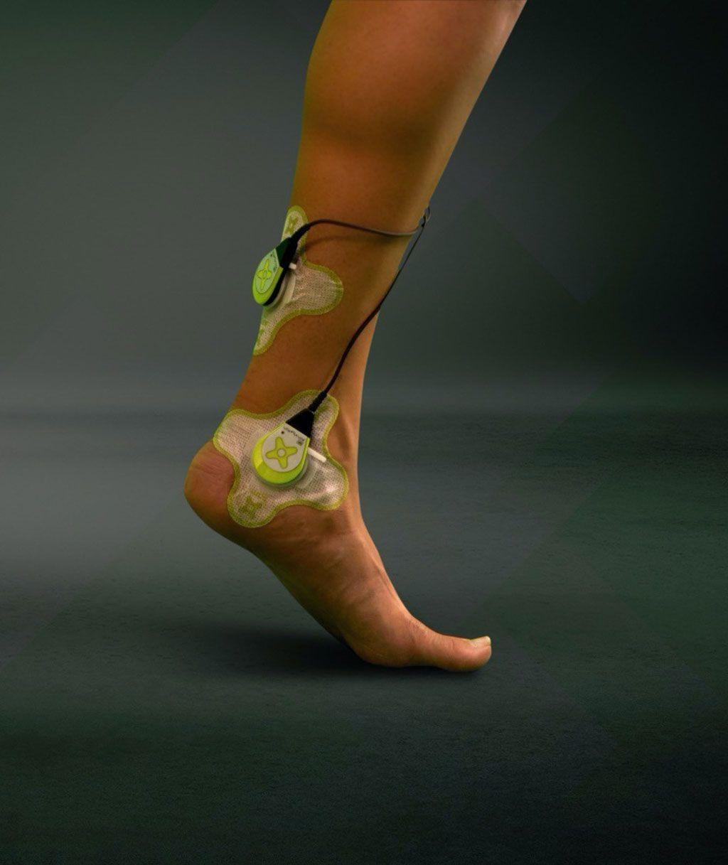 Imagen: El sam aplicado a una lesión del tendón de Aquiles para estimular la reconstrucción de la matriz de colágeno (Fotografía cortesía de ZetrOZ Systems)