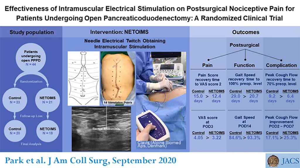 Imagen: La estimulación eléctrica intramuscular puede reducir el dolor postoperatorio (Fotografía cortesía de JACS)