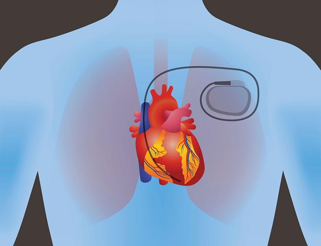Imagen: Colocar cables de marcapasos en el corazón a través de la vena axilar brinda mejores resultados (Fotografía cortesía de Shutterstock)