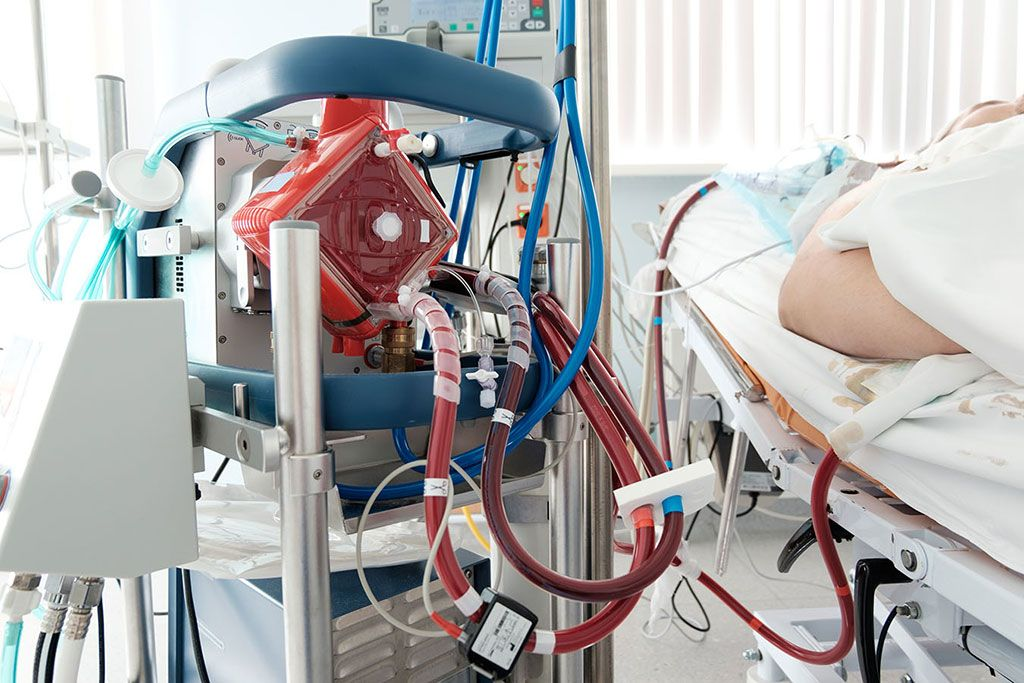 Imagen: La ECMO puede ayudar en el manejo de la insuficiencia respiratoria en pacientes con COVID-19 (Fotografía cortesía de Getty Images)