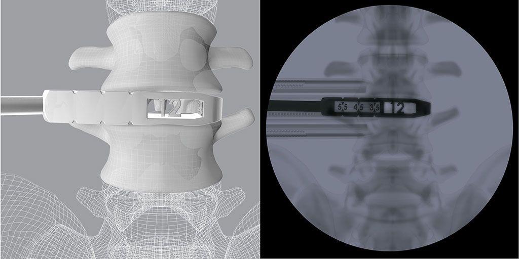 Imagen: Las pruebas 3D OLIF cuentan con mediciones de altura y longitud visibles solo bajo fluoroscopia (Fotografía cortesía de CoreLink)