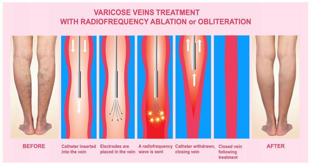Imagen: La ablación endovenosa ayuda a una recuperación más rápida de las úlceras venosas (Fotografía cortesía de Getty Images)