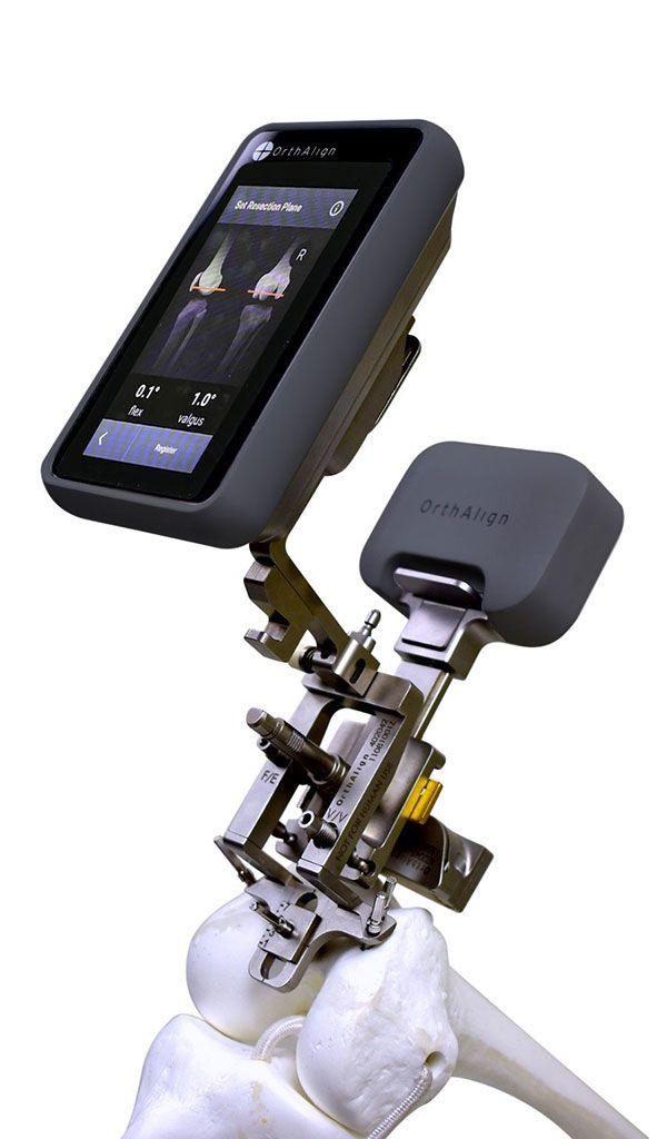 Imagen: El sistema de navegación Lantern de próxima generación (Fotografía cortesía de OrthAlign)
