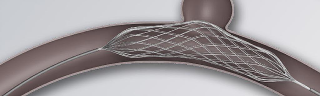 Imagen: El stent de malla de remodelación ajustable, Comaneci (Fotografía cortesía de Rapid Medical)