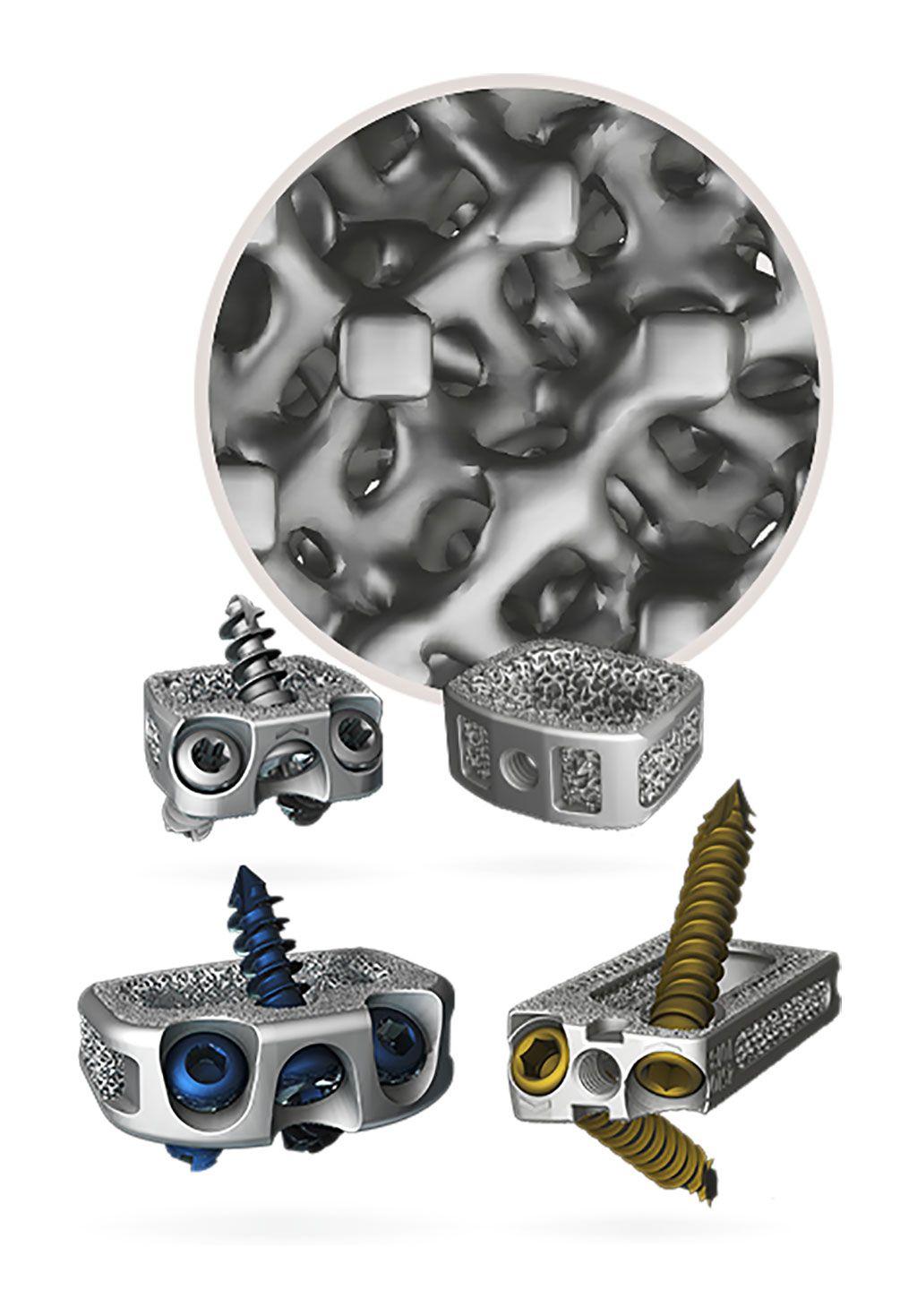 Imagen: La tecnología FLX mejora los dispositivos intersomáticos de titanio poroso impresos en 3D (Fotografía cortesía de Centinel Spine)