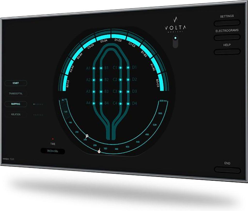 Imagen: El software de mapeo VX1 IA (Fotografía cortesía de Volta Medical)