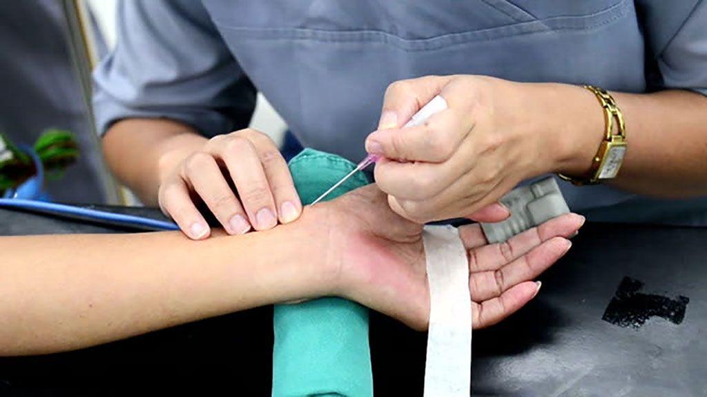 Imagen: Demasiada presión puede ocluir la arteria radial (Fotografía cortesía de Getty Images)