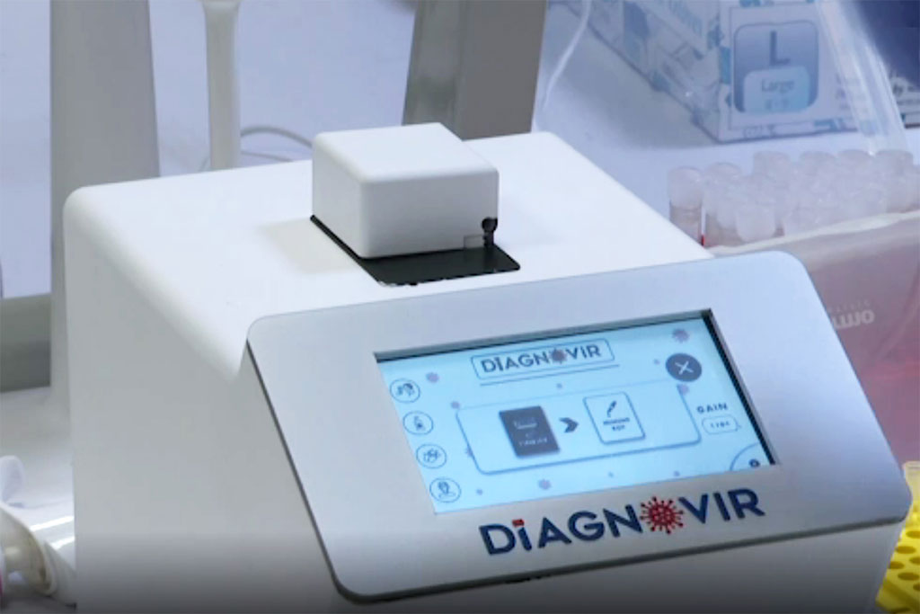Imagen: Diagnovir (Fotografía cortesía de la Universidad Bilkent)