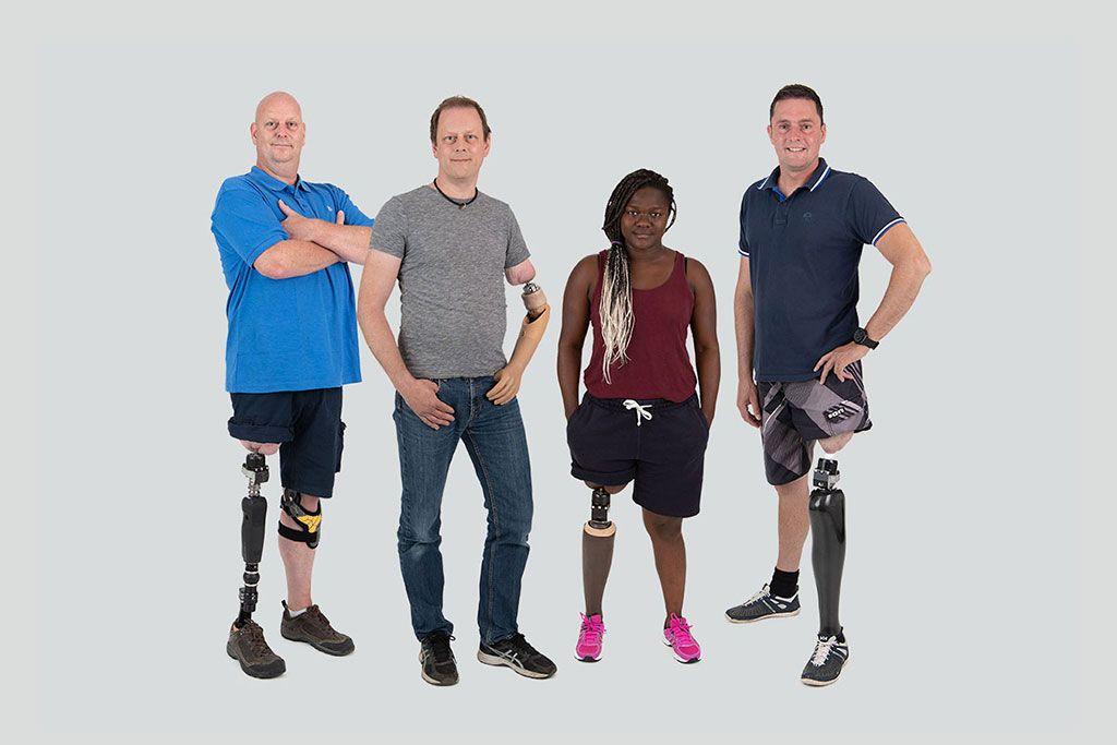 Imagen: Una prótesis que se conecta directamente al muñón de la pierna ayuda a la rehabilitación del amputado (Fotografía cortesía de Integrum)