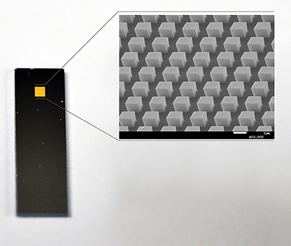 Imagen: El chip Immuno-storm tiene aproximadamente el tamaño de una moneda de 20 centavos (Fotografía cortesía de AIBN)