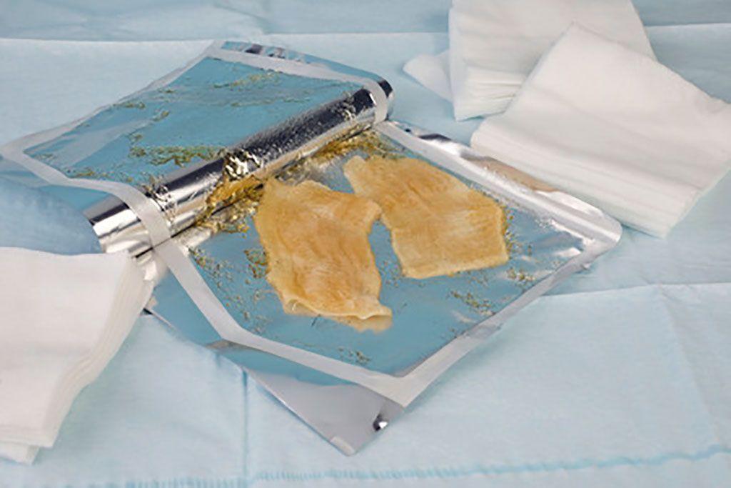 Imagen: Un ejemplo de un vendaje de hidrogel para heridas (Fotografía cortesía de 123rf.com)