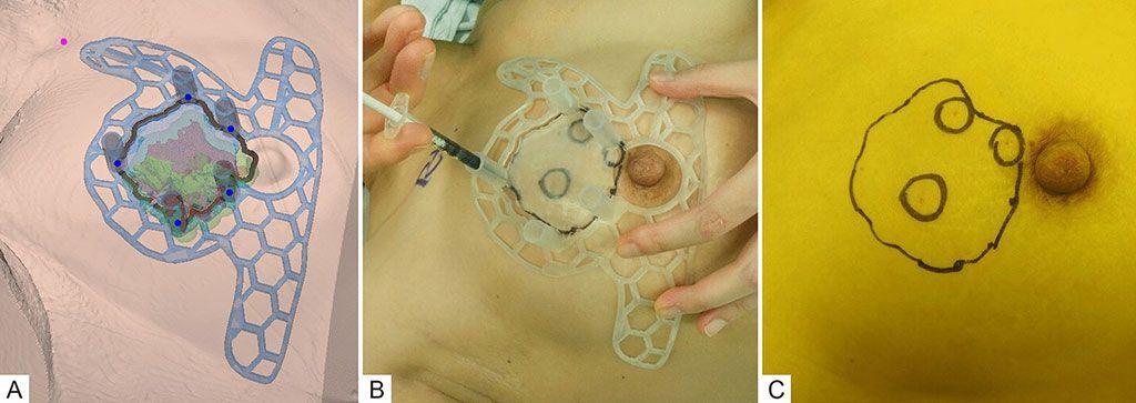 Imagen: Modelado 3DP-BSG basado en RM (A); marca en la superficie de la piel con 3DP-BSG y ubicación del tumor dentro de la mama inyectando colorante azul (B); después de retirar la guía. (Fotografía cortesía de AMC)