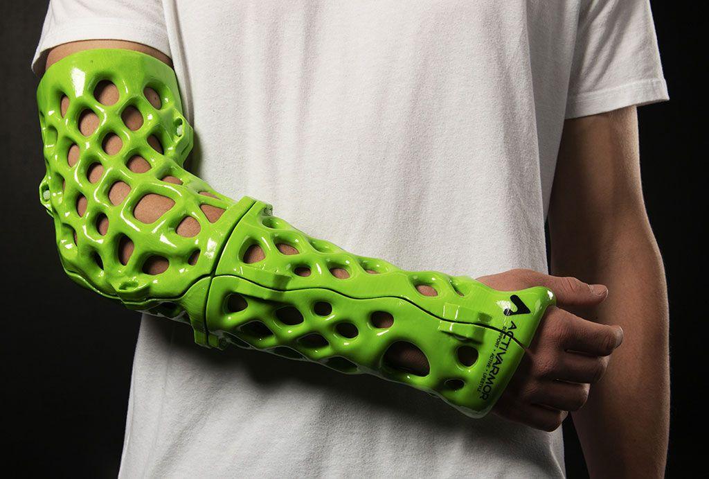 Imagen: Moldes ortopédicos exoesqueléticos que se adaptan a la anatomía humana (Fotografía cortesía de ActivArmor)