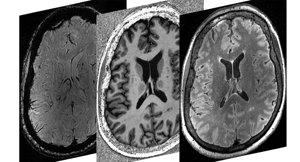 Imagen: Tres exploraciones de resonancia magnética 7T que demuestran el alto nivel de contraste y resolución que permite a los investigadores identificar el daño tisular después de la enfermedad COVID-19 (Fotografía cortesía de Rob Bartha / Instituto de Investigación Robarts)