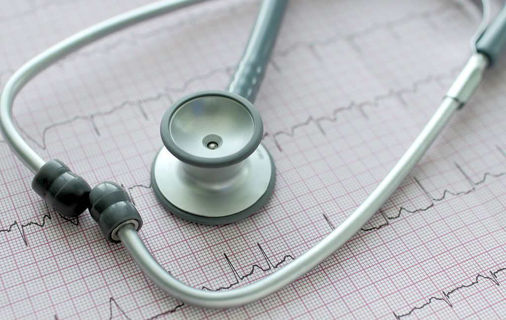 Imagen: Los datos del ECG se pueden analizar para predecir el riesgo futuro de FA (Fotografía cortesía de Getty Images)