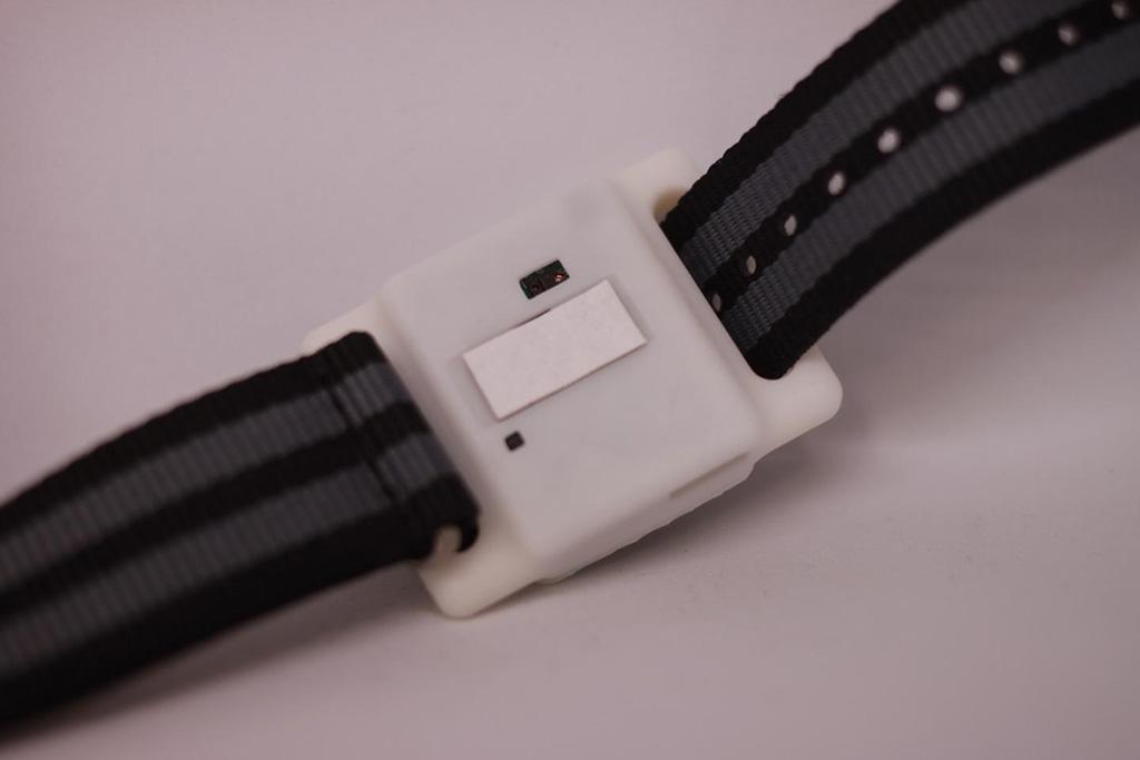 Imagen: Un dispositivo similar a un reloj de pulsera mide los niveles de citoquinas en el sudor pasivo (Fotografía cortesía de Kai-Chun Lin)