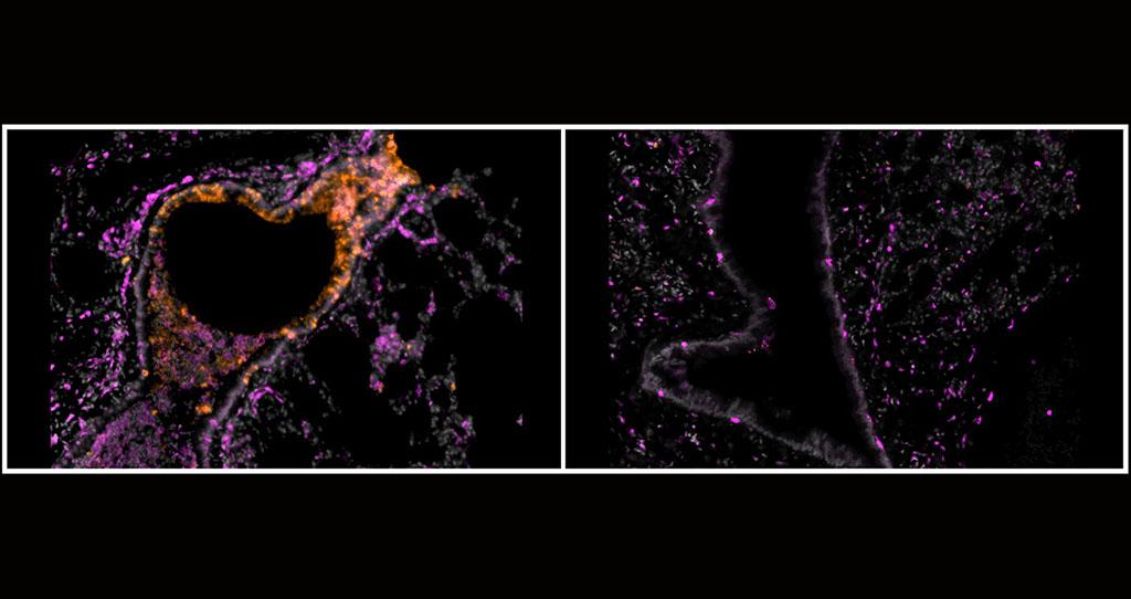 Imagen: Un nuevo estudio publicado en la revista Science Advances encontró que los nanocuerpos inhalables dirigidos a la proteína Spike del coronavirus SARS-CoV-2 pueden prevenir y tratar la COVID-19 severa en hámsteres. Aquí, los bronquiolos de hámsteres enfermos con COVID-19 sin tratar (izquierda) y tratados con nanocuerpos inhalables (derecha) muestran el impacto del método (Fotografía cortesía de Nambulli et al., Science Advances)