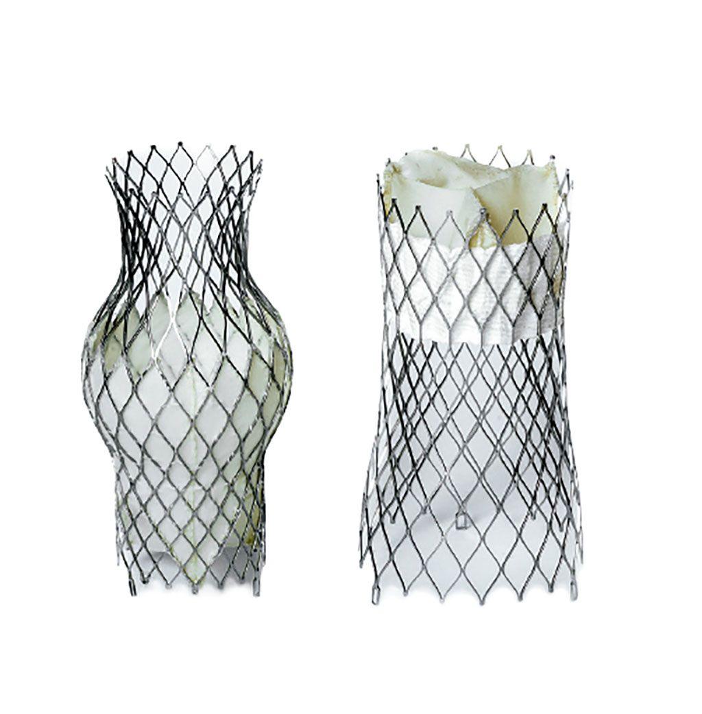 Imagen: Las válvulas Bicval transcatéter, TricValve de la vena cava superior (I) e inferior (D) (Fotografía cortesía de P + F Products + Features)