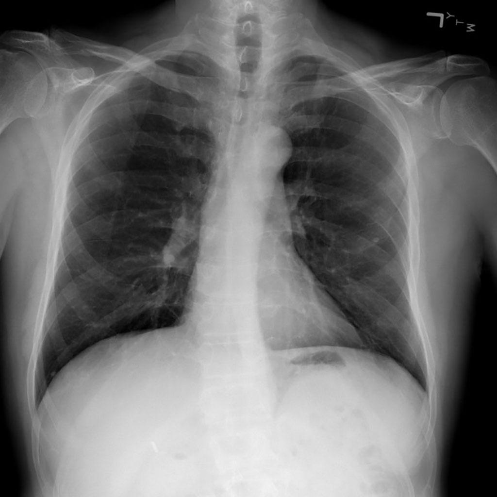 Imagen: Los modelos de IA médica confían en 'atajos' que podrían conducir a un diagnóstico erróneo de la COVID-19 (Fotografía cortesía del Centro Clínico de los Institutos Nacionales de Salud)