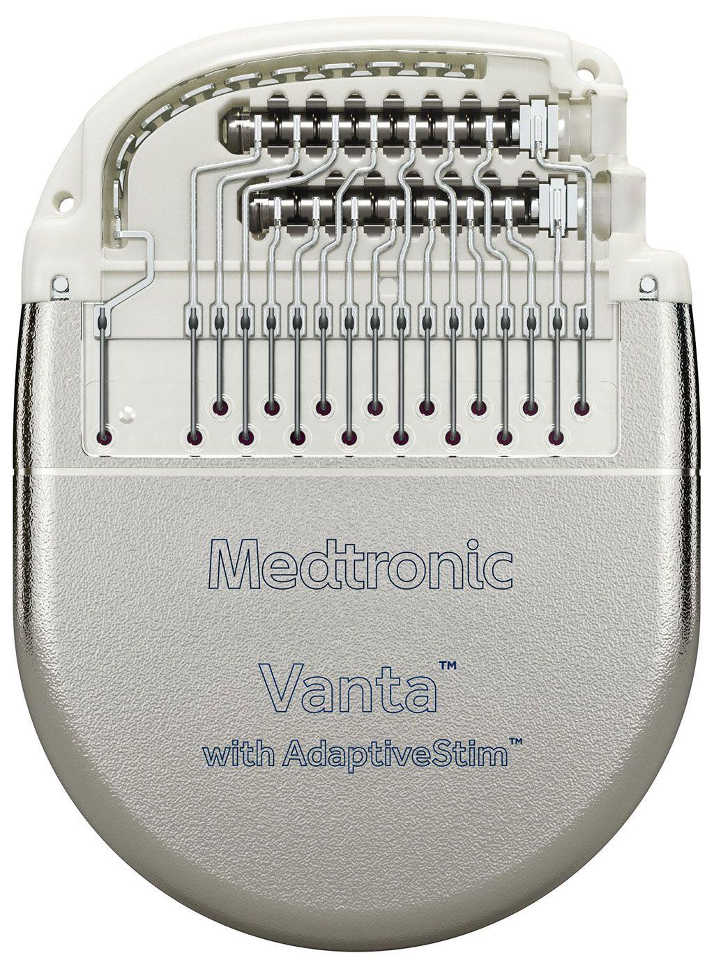 Imagen: El neuroestimulador implantable Vanta SCS (Fotografía cortesía de Medtronic)
