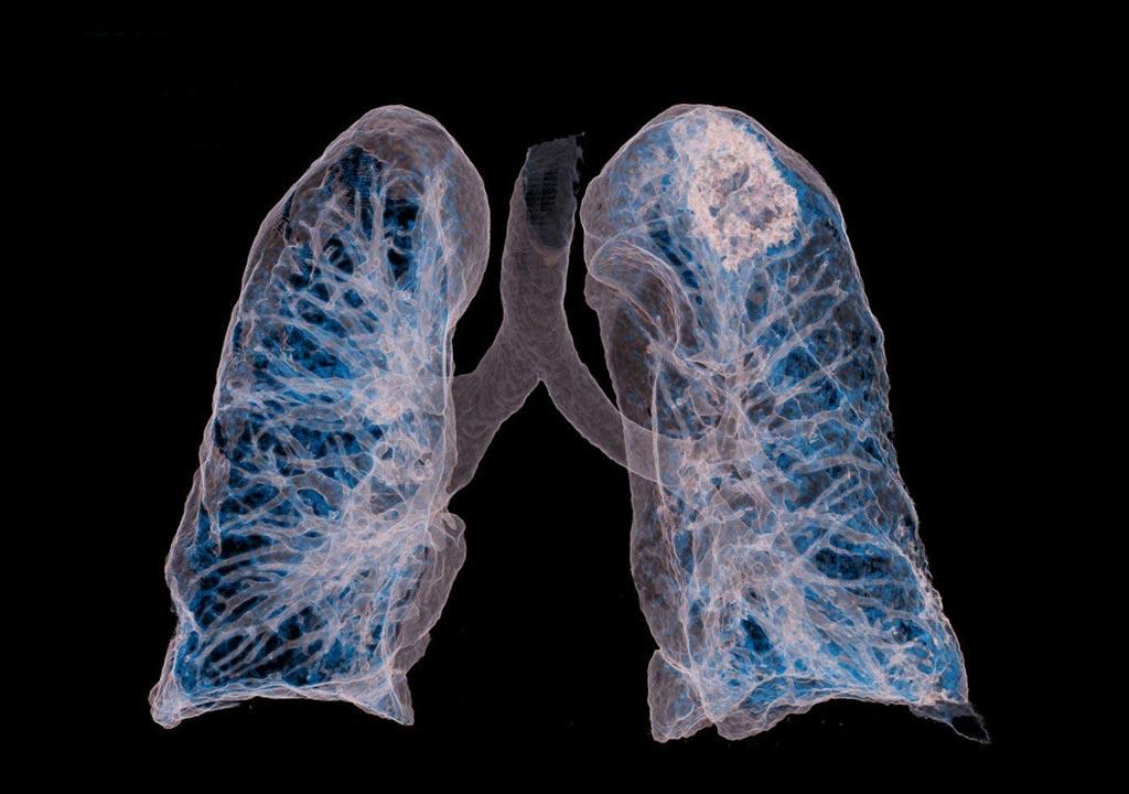 Imagen: Las tomografías computarizadas demuestran ser altamente exactas para diagnosticar la neumonía por COVID-19 y predecir la muerte o la necesidad de intubación (Fotografía cortesía de Siemens Healthineers)